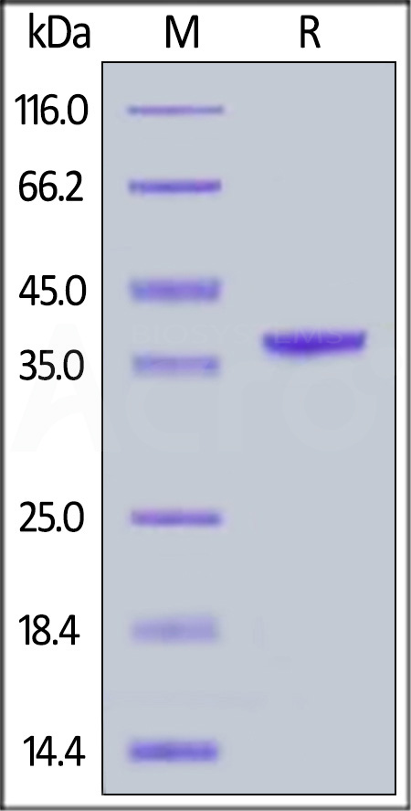 Human Arginase 1, His Tag (Cat. No. AR1-H5228) SDS-PAGE gel