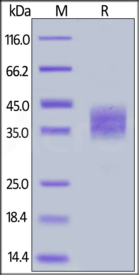 Human B7-H3, His Tag (Cat. No. B73-H52E2) SDS-PAGE gel