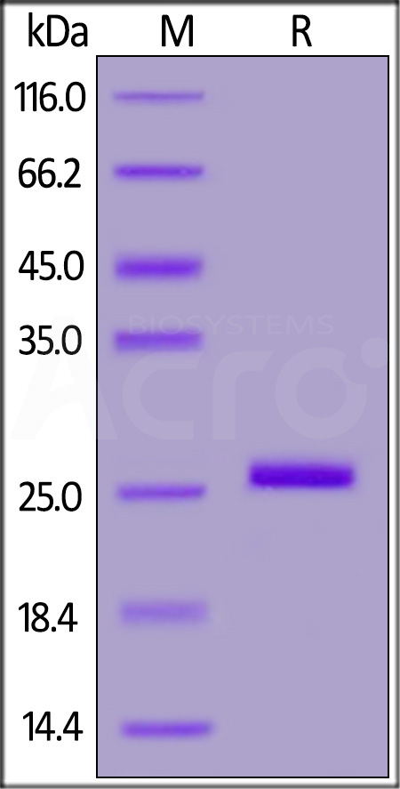 Human Bcl-x, His Tag (Cat. No. BC1-H5120) SDS-PAGE gel