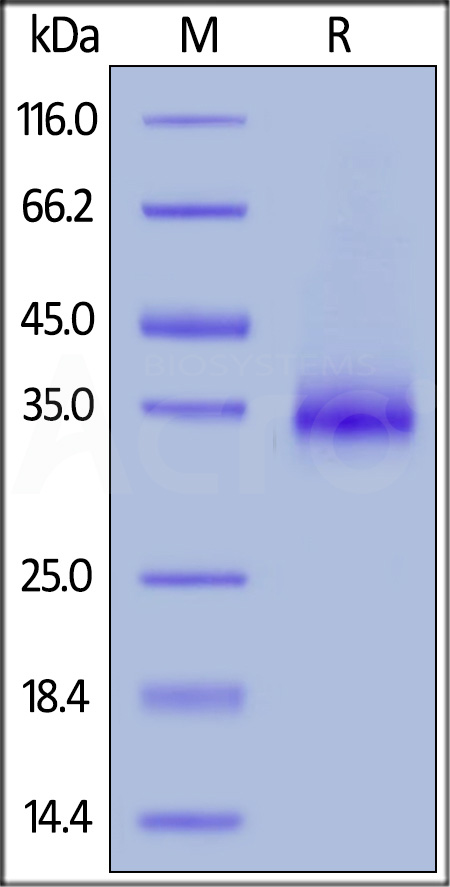 Human CD2, His Tag (Cat. No. CD2-H5226) SDS-PAGE gel