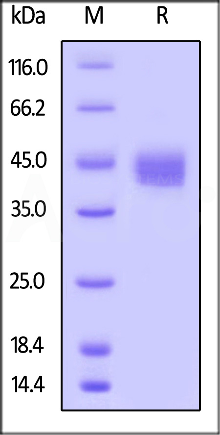 Biotinylated Human CD23, His,Avitag (Cat. No. CD3-H82Q5) SDS-PAGE gel