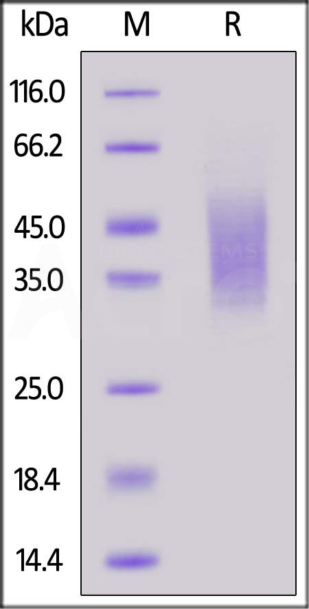 Human CD44, His Tag (Cat. No. CD4-H5226) SDS-PAGE gel