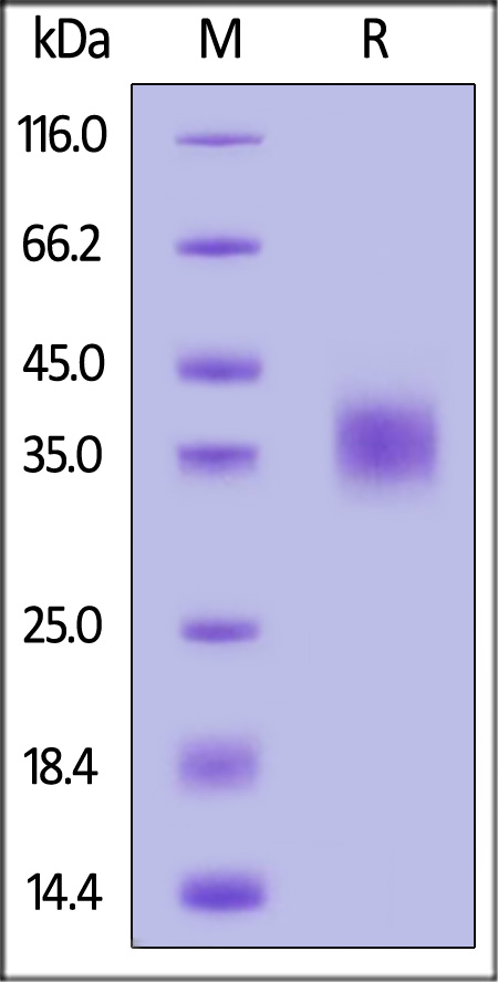 Human CD47, His Tag (Cat. No. CD7-H5227) SDS-PAGE gel