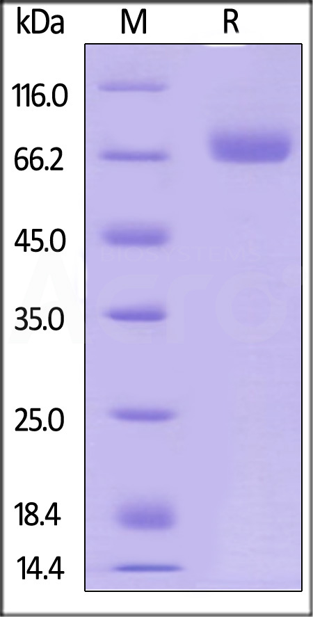 Human CD38 Protein, Fc Tag (Cat. No. CD8-H5255) SDS-PAGE gel