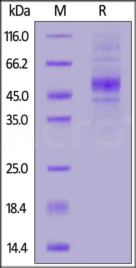 Human CD19 (20-291) Protein, His Tag (Cat. No. CD9-H52H2) SDS-PAGE gel