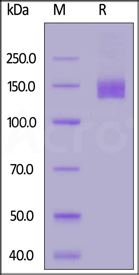 HCMV Glycoprotein B (gB), Fc Tag (Cat. No. CMB-V5255) SDS-PAGE gel