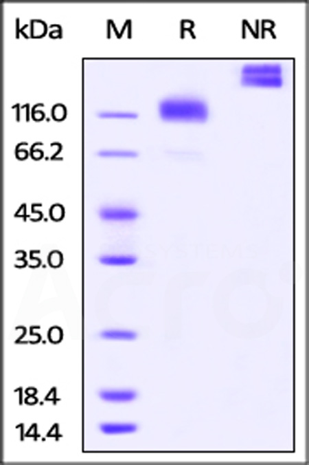 Cynomolgus M-CSF R, Fc Tag (Cat. No. CSR-C5252) SDS-PAGE gel