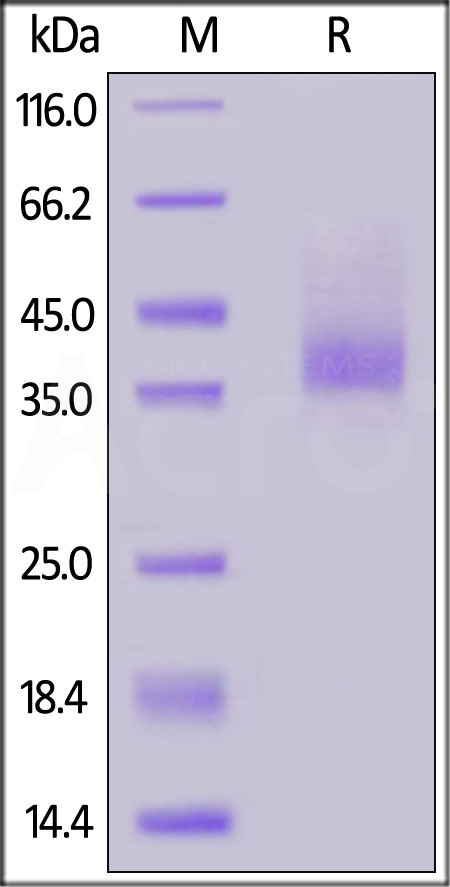 Human CXCR4, Fc Tag (Cat. No. CX4-H5269) SDS-PAGE gel