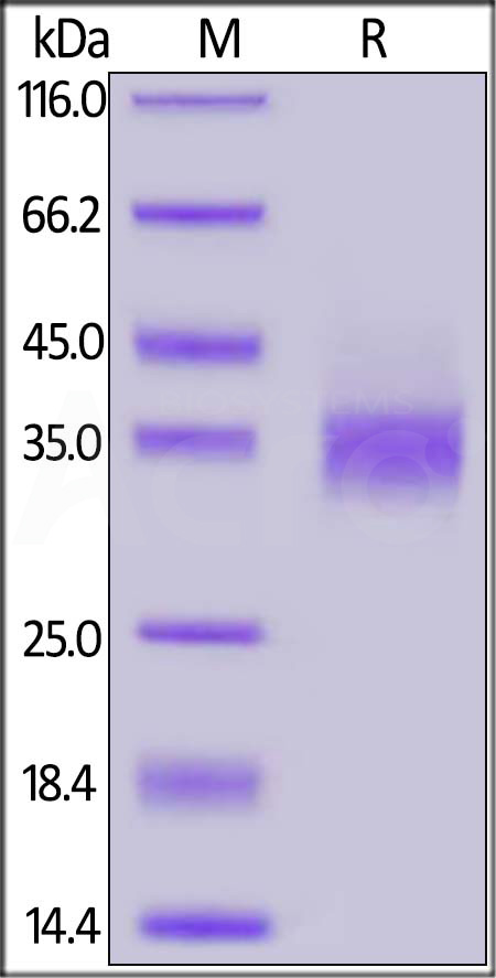 Biotinylated Human EpCAM, His Tag (Cat. No. EPM-H8223) SDS-PAGE gel