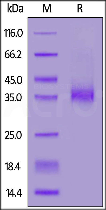 Biotinylated Human EpCAM, Avitag,His Tag (Cat. No. EPM-H82E8) SDS-PAGE gel