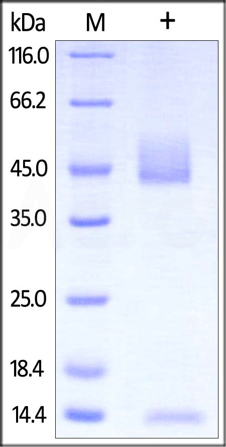 Rat FCGRT&B2M Heterodimer Protein, His Tag&Strep II Tag (SPR verified) (Cat. No. FCM-R5287) SDS-PAGE gel