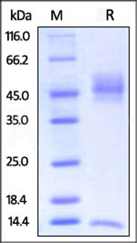 Biotinylated Rat FcRn / FCGRT & B2M (Cat. No. FCM-R82W7) SDS-PAGE gel