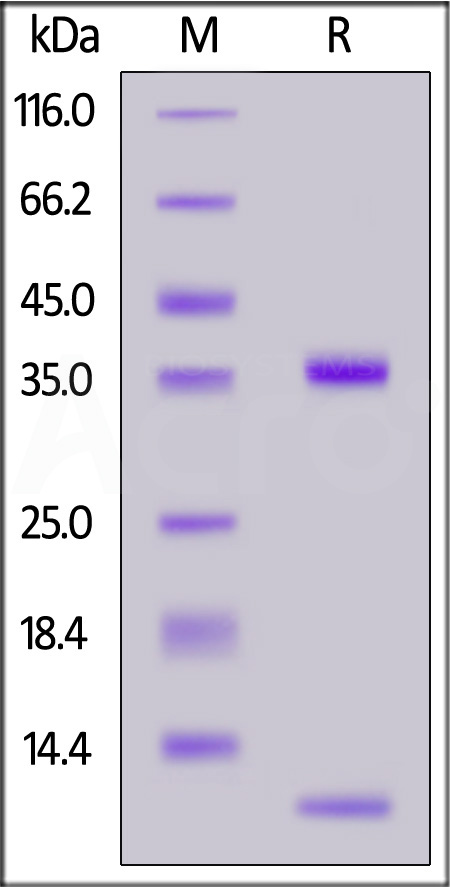 Biotinylated Bovine FcRn Heterodimer Protein, His,Avitag (SPR verified) (Cat. No. FCN-B82W3) SDS-PAGE gel