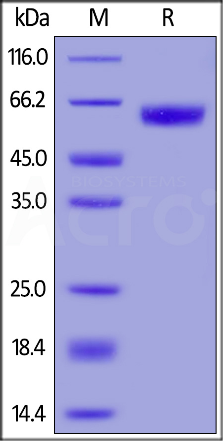 Human GM-CSF R alpha, His Tag (SPR verified) (Cat. No. GRA-H52H7) SDS-PAGE gel