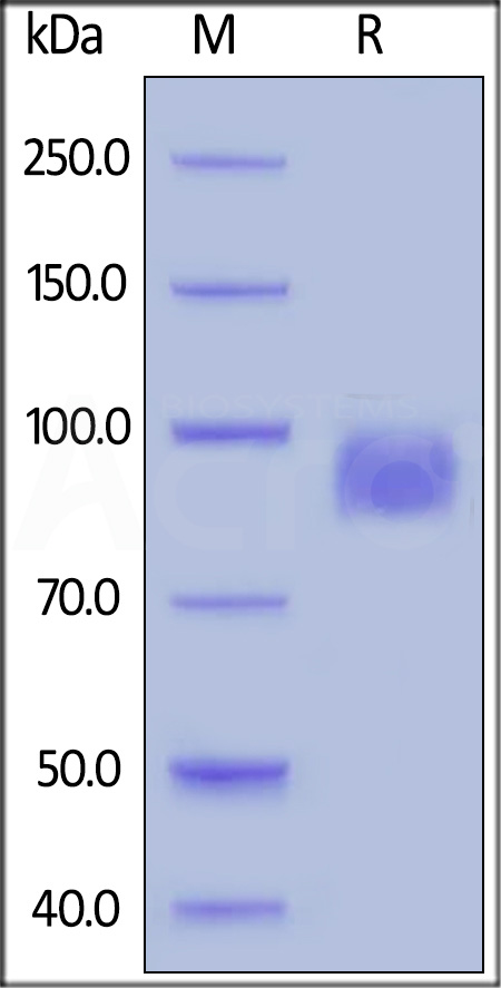 Biotinylated Human Her2, His Tag, primary amine labeling, long spacer (Cat. No. HE2-H822R) SDS-PAGE gel