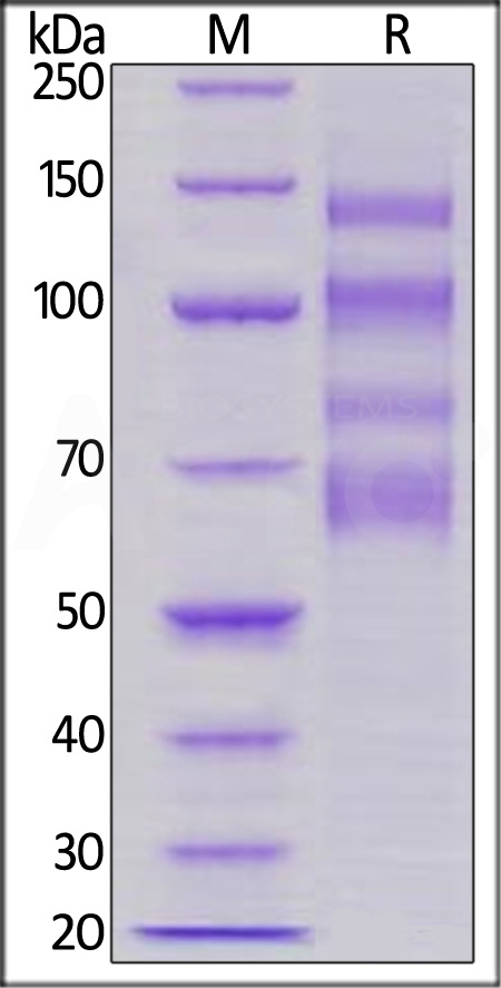 Human ITGA4&ITGB7 Heterodimer Protein, His Tag&Tag Free (Cat. No. IT7-H52W4) SDS-PAGE gel