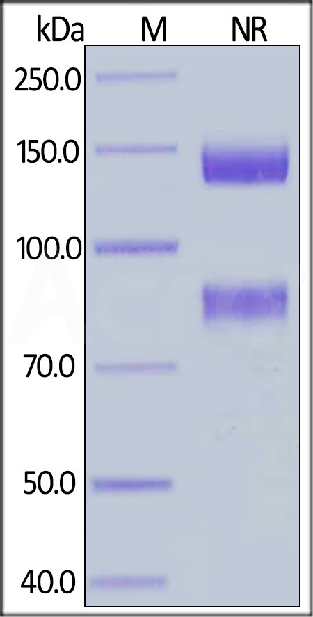 Human ITGAV&ITGB8 Heterodimer Protein, His Tag&Tag Free (Cat. No. IT8-H52W4) SDS-PAGE gel
