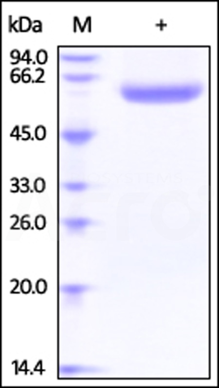 Human Lipopolysaccharide, His Tag (Cat. No. LBP-H52H5) SDS-PAGE gel