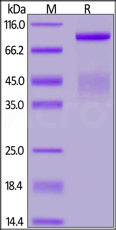 Human HGF R, His Tag (Cat. No. MET-H5227) SDS-PAGE gel