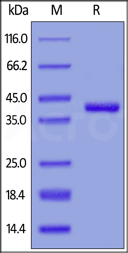 Human Nectin-4, His Tag (Cat. No. NE4-H52H3) SDS-PAGE gel