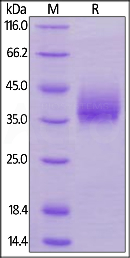 Human NTB-A, His Tag (Cat. No. NTA-H52Ha) SDS-PAGE gel