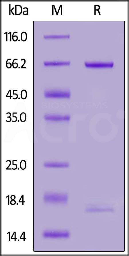 Biotinylated Human PCSK9, Avitag,His Tag (Cat. No. PC9-H82E7) SDS-PAGE gel