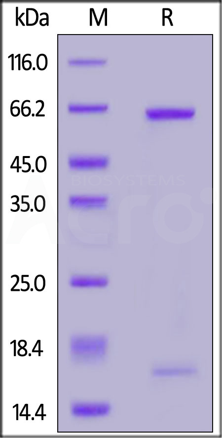 Biotinylated Human (D374Y) PCSK9 (Cat. No. PCY-H82E7) SDS-PAGE gel
