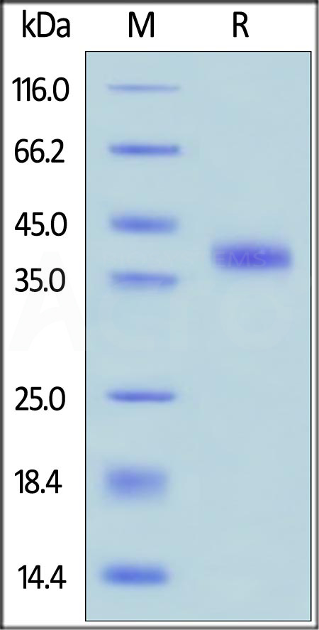 Human R-Spondin 1, His Tag (Cat. No. RS1-H4221) SDS-PAGE gel