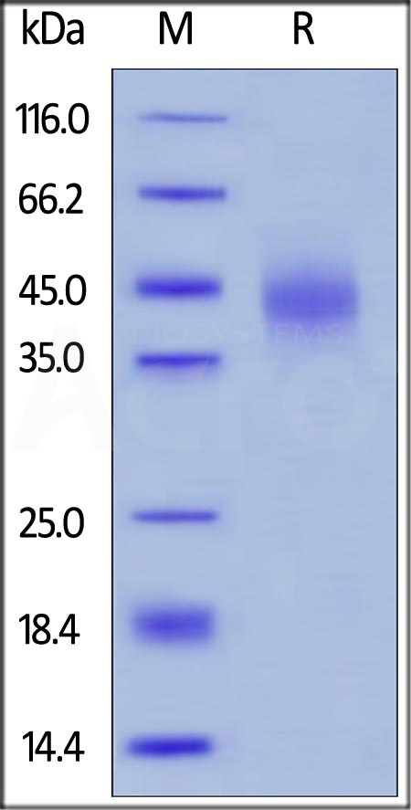 Human TFPI, His Tag (Cat. No. TFI-H5226) SDS-PAGE gel