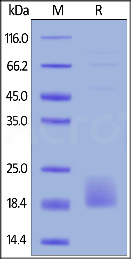 Biotinylated Human TIGIT (recommended for biopanning), His Tag, Avi Tag (Cat. No. TIT-H82E5) SDS-PAGE gel